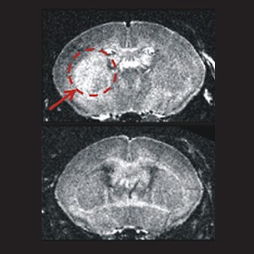 MRI scans from the brain-damaged mice. The bottom image is from a mouse with a higher level of Nmnat1. - PROCEEDINGS OF THE NATIONAL ACADEMY OF SCIENCES