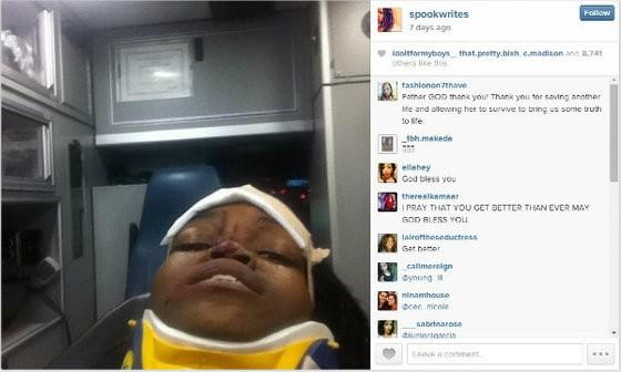 The selfie Aaten-White took in the ambulance. - COURTESY OF MYA AATEN-WHITE