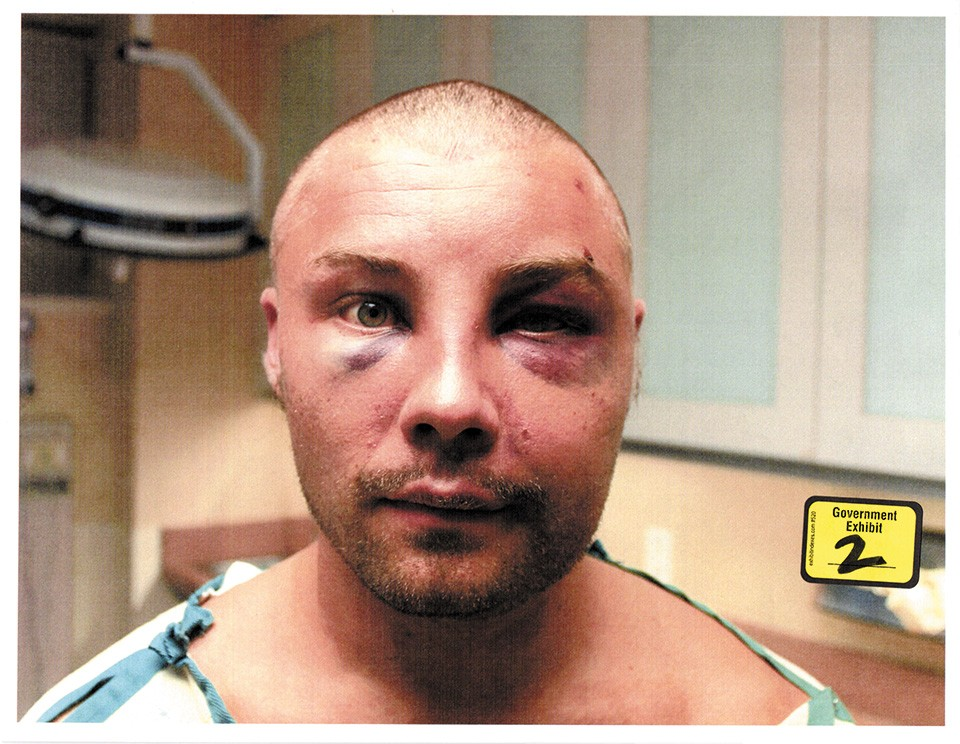 Taken at the hospital, police photos of Ellis Athanas III show his injuries. - COURT FILES