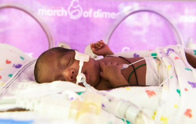 St. Louis received an 'F' on a March of Dimes report card that reviewed premature birth rates nationwide. - IMAGE VIA MARCH OF DIMES