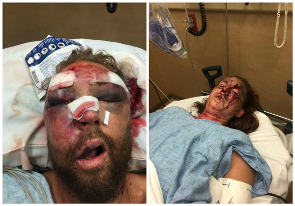 Rob Ludwig and his girlfriend, Emma, were both hospitalized after a brutal beating. - BOTH IMAGES VIA ROB LUDWIG