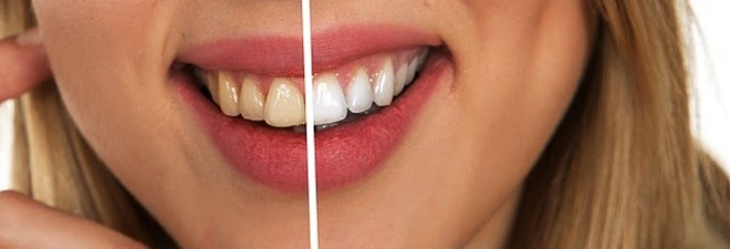 02_tooth-2414909_640.jpg
