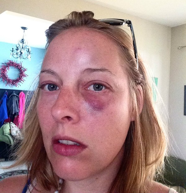 Megan Rieke was left bruised after a run-in with an angry Crestwood cop, her lawyer says. - COURTESY OF JAMES BRADY