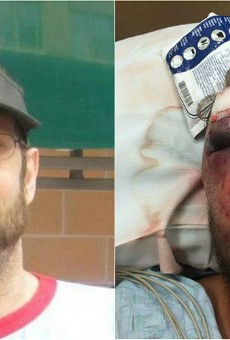 Rob Ludwig, left, before the attack, and after (right).