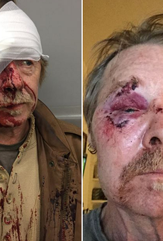 """St. Louis Musician Attacked in """"Knockout Game"""" Assault Says He's """"Not Angry at Them"""""""