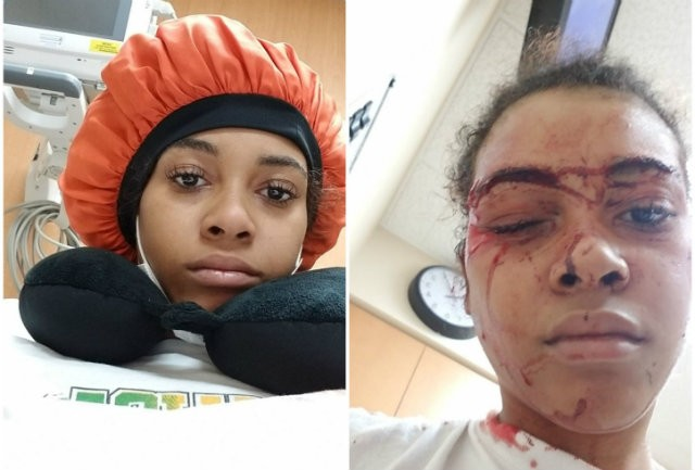 Vanity Allen before (left) and after her lawyer says she was struck by a security guard. - COURTESY OF ALBERT WATKINS