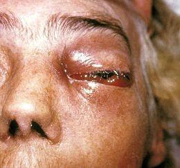 Zygomycosis: the next horrible thing to hit Joplin. - IMAGE VIA