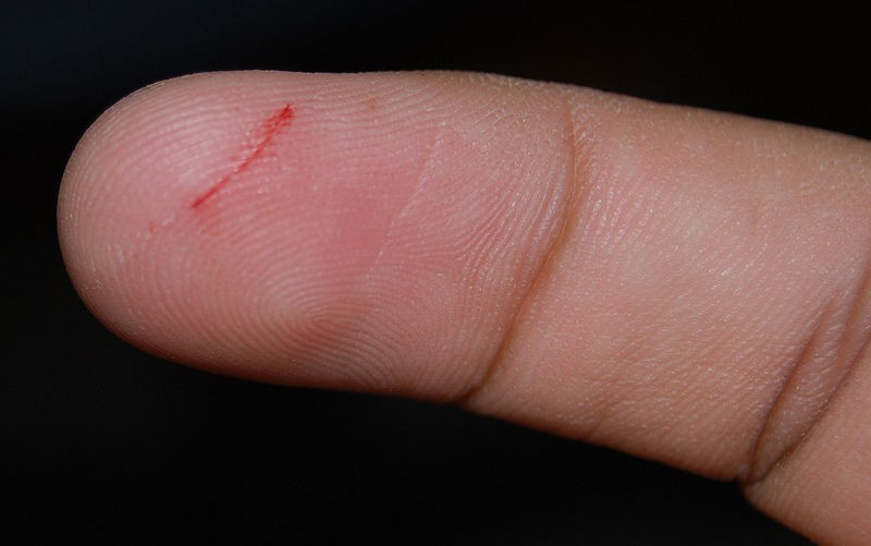 Paper cuts: Hard to stop the bleeding.