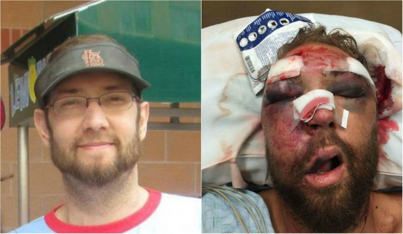 Rob Ludwig, left, before the attack, and after (right). - PHOTOS COURTESY OF ROB LUDWIG