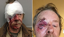 "St. Louis Musician Attacked in ""Knockout Game"" Assault Says He's ""Not Angry at Them"""