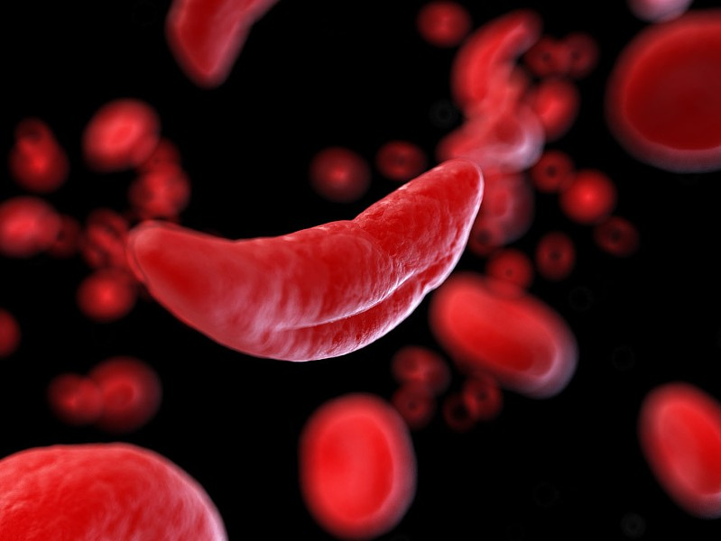 People with sickle cell anemia have abnormally shaped blood cells, which can contribute to a number of health conditions and risks. - FILE PHOTO