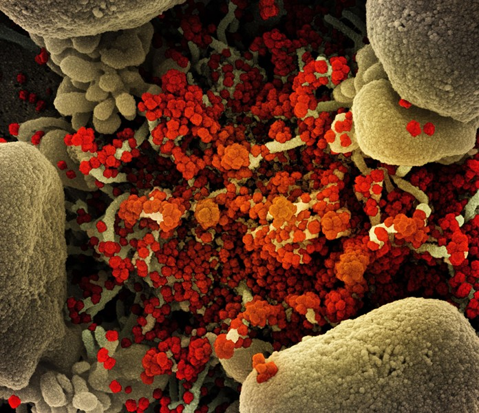 An apoptotic cell (tan) heavily infected with novel coronavirus particles (orange), isolated from a patient sample and viewed through a scanning electron micrograph. - PHOTO PROVIDED BY NATIONAL INSTITUTE OF ALLERGY AND INFECTIOUS DISEASES