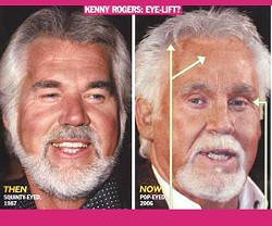 celebrityplasticsurgery.tv