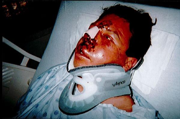"""Diego Martinez following his 2011 arrest"" - COURTESY PHOTO"