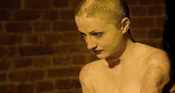 Burn victim Tedy Ursuleanu - MAGNOLIA PICTURES
