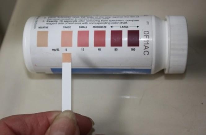Как проверить уровень мочевой кислоты в домашних условиях