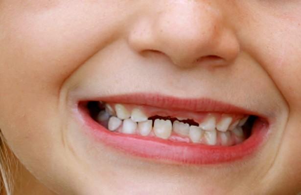 f-teeth.jpg