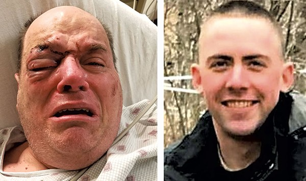 Man Who Died After Fight With Cop Had Broken Jaw, Eye Socket