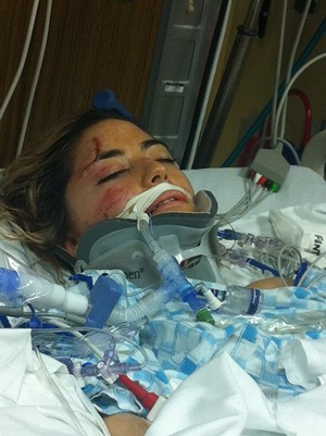 After suffering severe injuries from being run over by a car, Monique Porsandeh was in coma for weeks. - TEAM MONIQUE