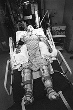 JACK  GESCHEIDT - Andy Gescheidt was struck in the head by a - trolley pole.