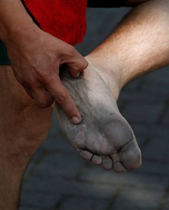 Could probably use a foot rub and a pedicure - COURTESY OF MICHELE HARRIS