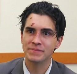 Timony after the brawl. - VIA ABC7