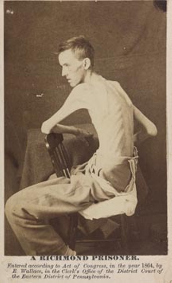 Pvt. Jackson O. Broshears of Indiana was reduced to skin and bones after his stay at the Confederate prison encampment on Belle Isle. - LIBRARY OF CONGRESS