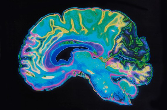 brain_scan.jpg